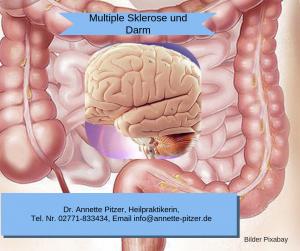 Multiple Sklerose und Mikrobiom